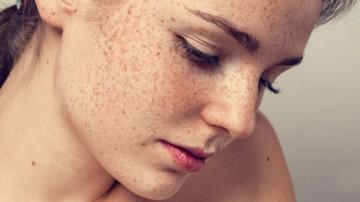 Pigmente Lezyon Tedavileri